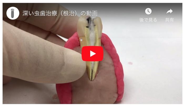後 虫歯 激痛 治療